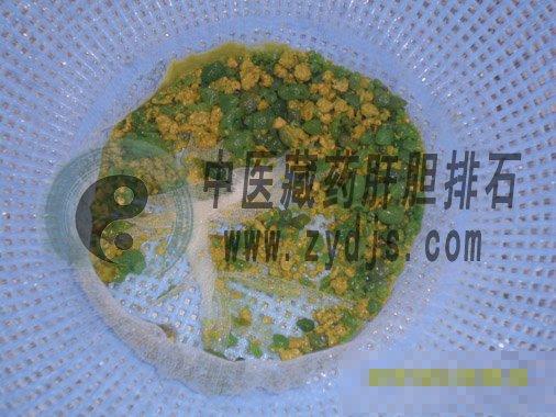 滨州韩女士胆囊泥沙样胆结石自然排石成功